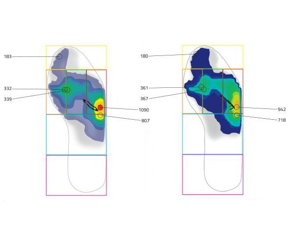 足裏の圧力分布を見る。左のSPD-SLに対して、右の3AXは圧力分布が均等化している